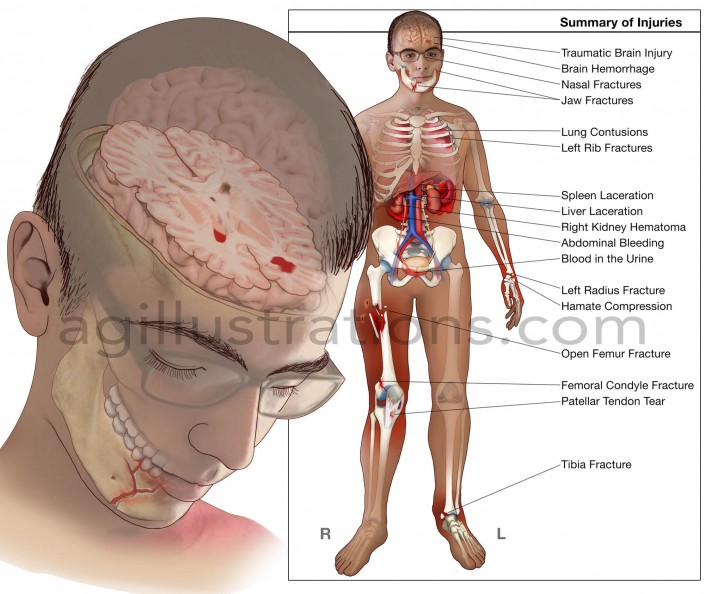neuromotor iep i choose a student with traumatic brain injury seizure disorders cerebral palsy or sp Etc), and impairments from other causes (eg, cerebral palsy  of neuromotor impairments are cerebral palsy and orthopedic impairments have.