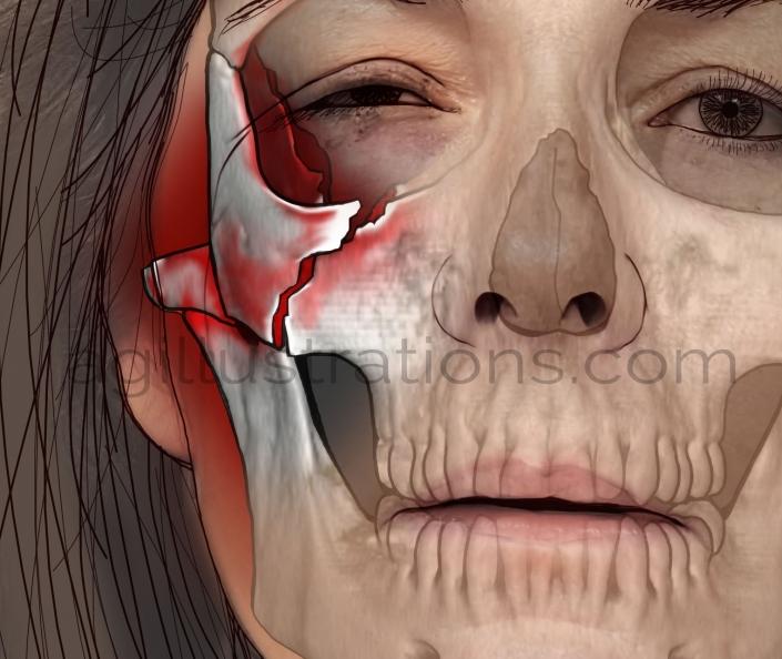 Case Study Skull